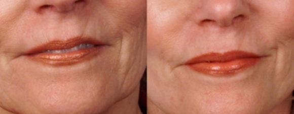 dermaroller-wrinkles-1