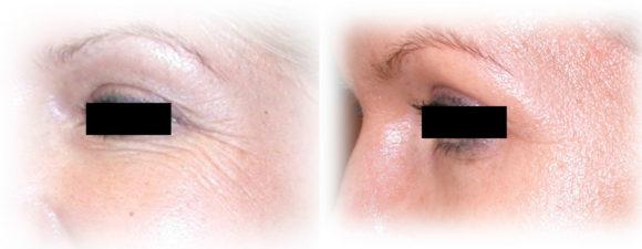 dermaroller-wrinkles-2b