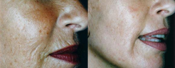 dermaroller-wrinkles-3