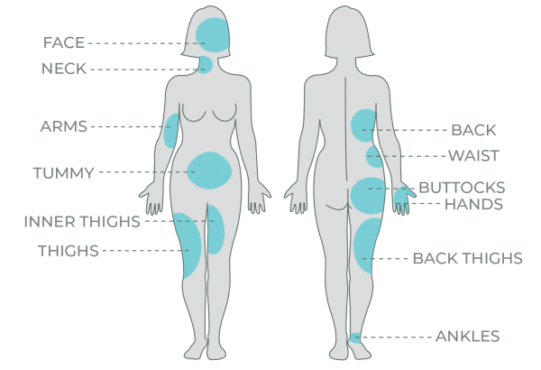body-map.png